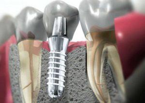 Имплантаты зубные