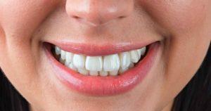 реставрация зубов эмали
